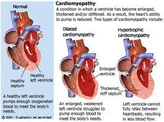 treatment arrhythmogenic right ventricular cardiomyopathy