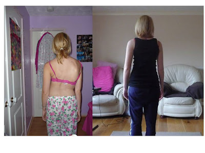 my back before and after scoliosis surgery