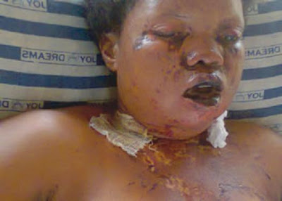 House Wife Bathes Husband's Lover With Acid! Lover Now Feeds Through Her Nose