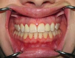 http://dentalimplantsindia.org/treatments-offered/dental-implants/immediate-load-implants/