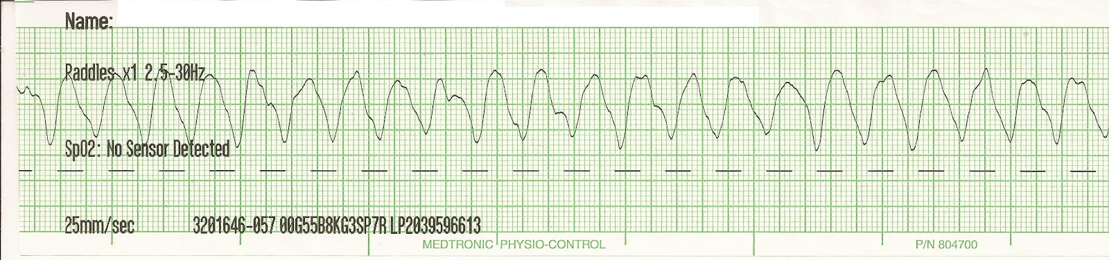 A new PEA diagnostic algorithm: ECG and ultrasound