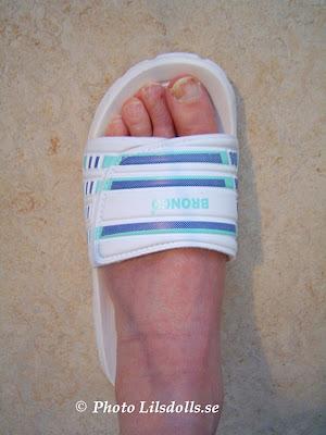 hallux valgus, halluxvalgus-operation, efter op i sko