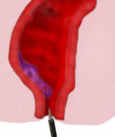 Escleroterapia de hemorroidas