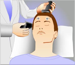 Terapia electroconvulsiva o electroshock