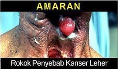 kesan bahaya rokok boleh menyebabkan kanser