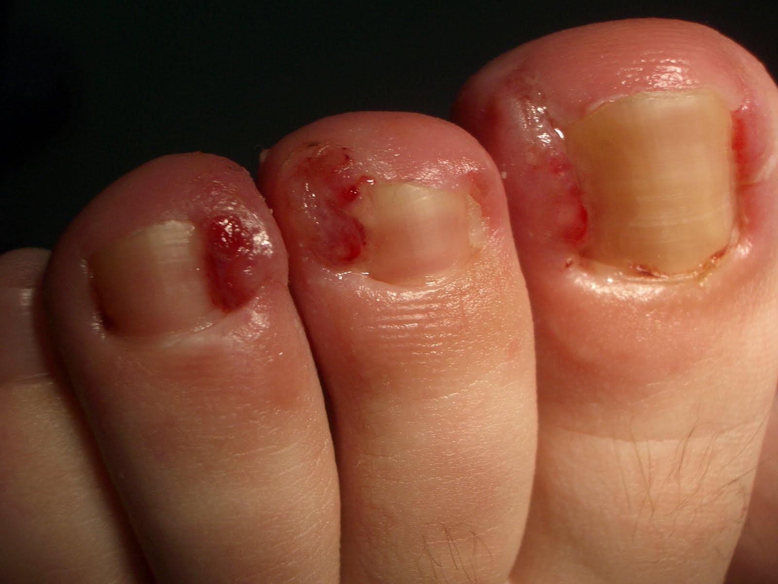 Pantimedias con 5 dedos del pie