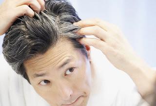 Cara alami mengatasi rambut ubanan