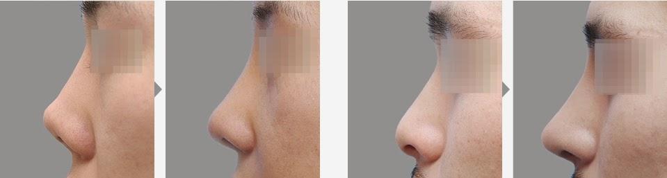 Foto sebelum dan sesudah operasi plastik hidung pesek di Bedah Plastik Wonjin-2