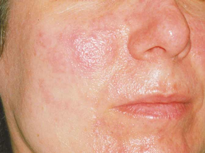 Red Face Rosacea Cure