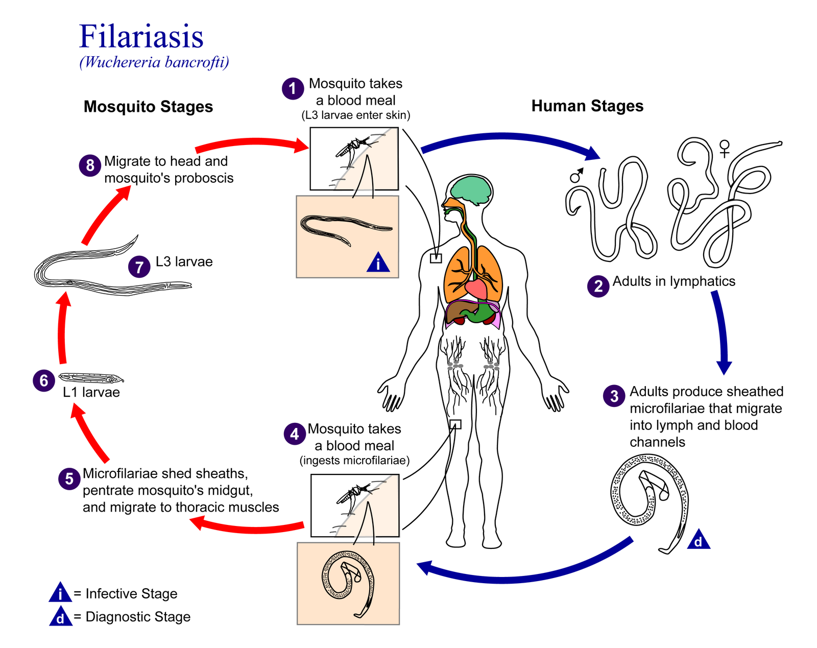 the clinical description of the disease elephantiasis or filariasis Elephantiasis – definition is the root cause of elephantiasis or lymphatic filariasis filariasis is a complicated disease and cannot be treated easily.
