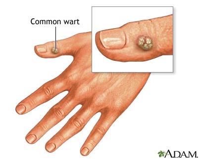 Common Warts MBBS Medicine (...
