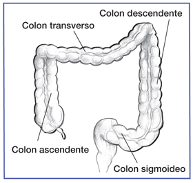 Enfermedad Inflamatoria Intestinal Pate 1