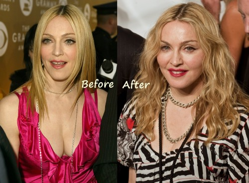 Image result for Madonna Hannah before and after