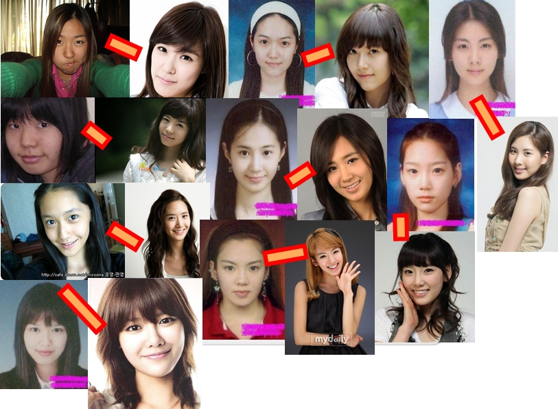 tiffany hwang plastic surgeryYuri Snsd Before And After