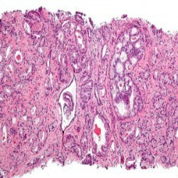 Estresse alimenta células cancerosas