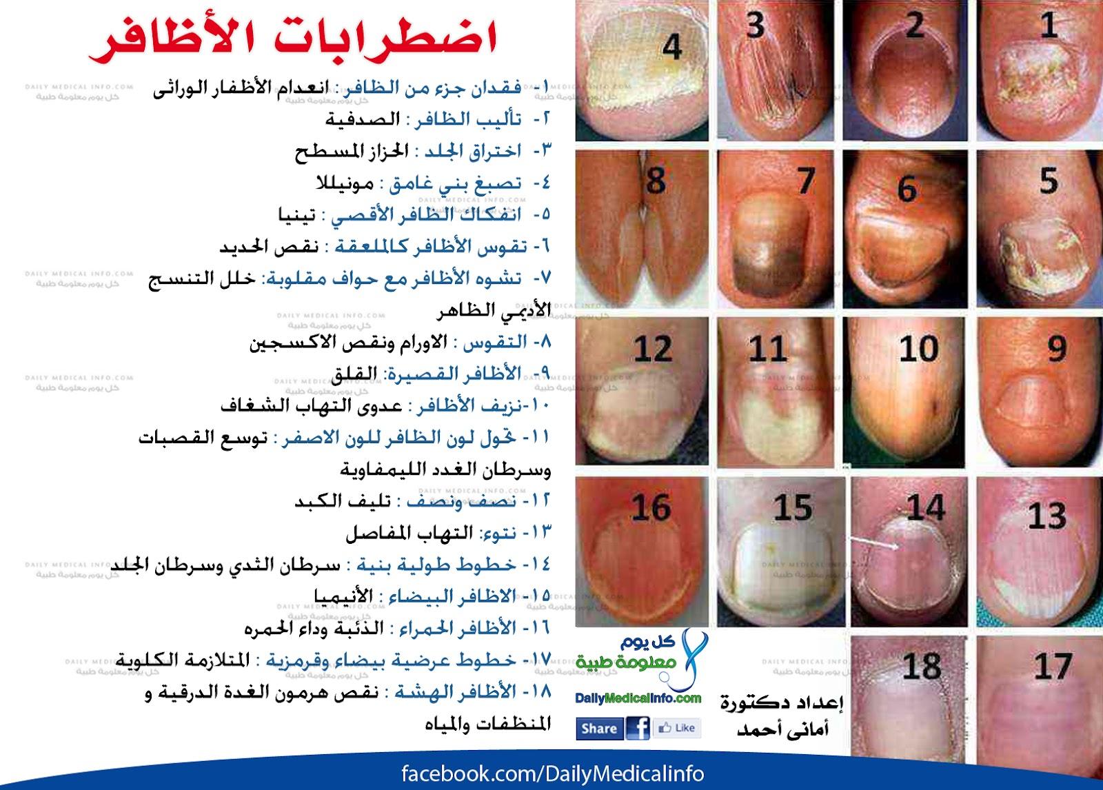 بالصور اظافرك عنوان صحتك What+Your+Nails+Say+About+Your+Health