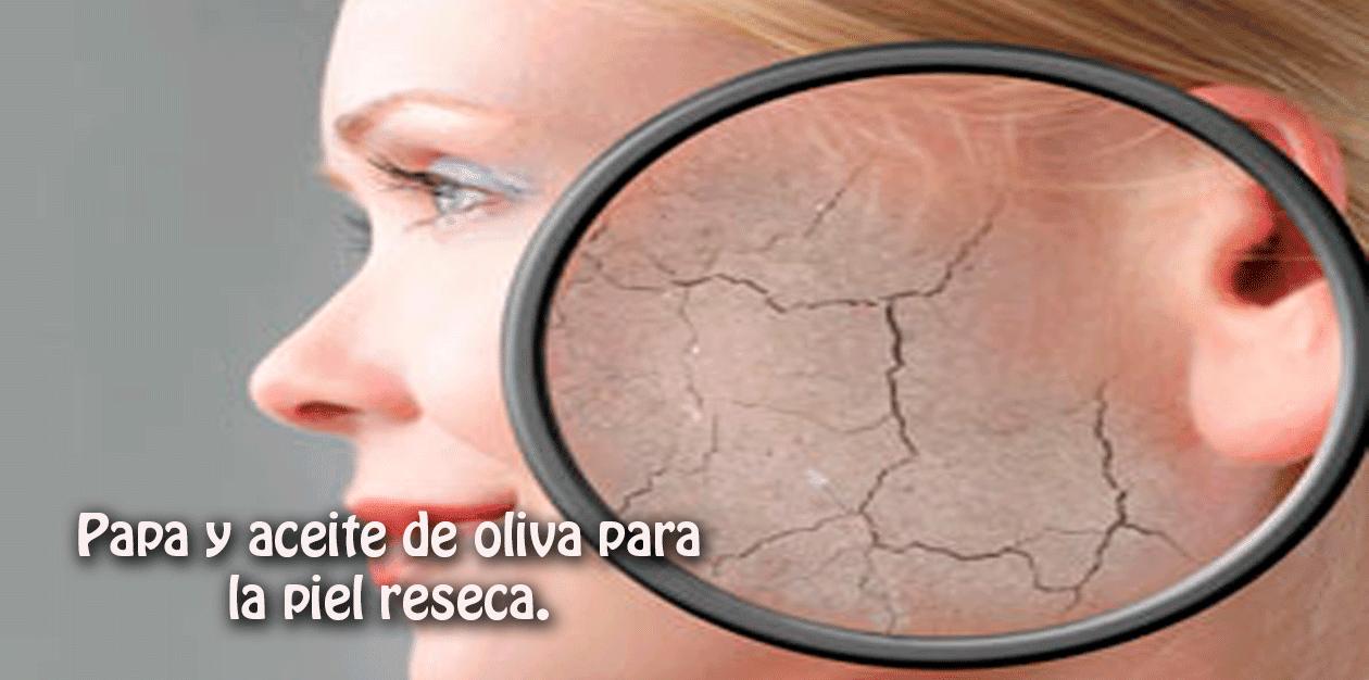 El tratamiento de la seca, escamosa piel facial