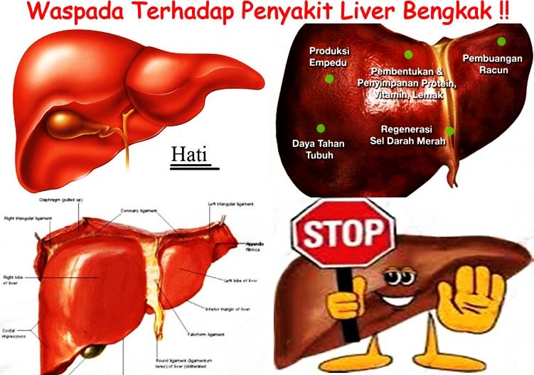 Pengobatan Tradisional Liver Bengkak