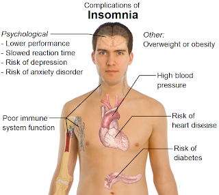 Insomnia Causes, Symptoms, Diagnosis, Treatmant And Prevention