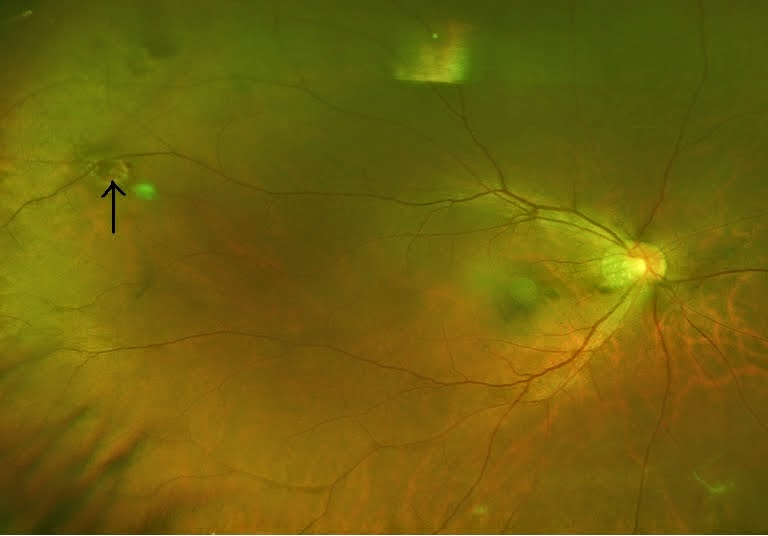 A retinal hole with operculum floating above it