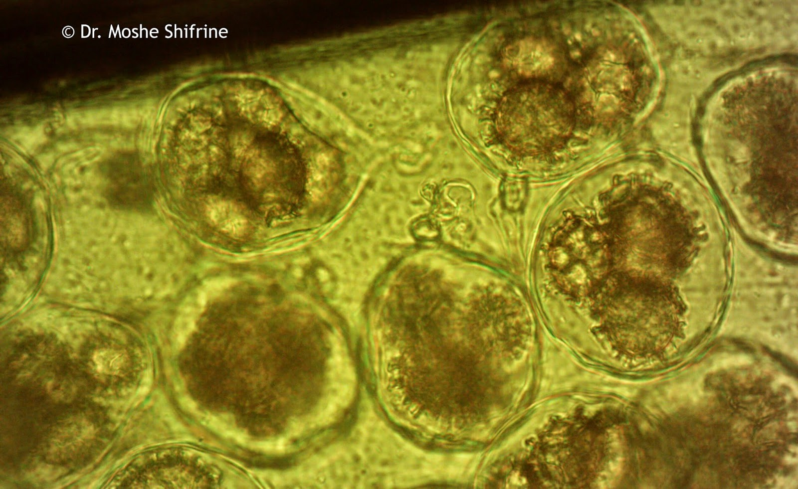 Funghi spore, 1000x, under biological microscope.