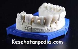 Cara mengobati gigi ngilu secara alami