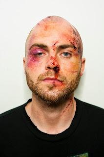 Ένα στα τρία θύματα της ενδοοικογενειακής βίας στη Βρετανία είναι αρσενικά