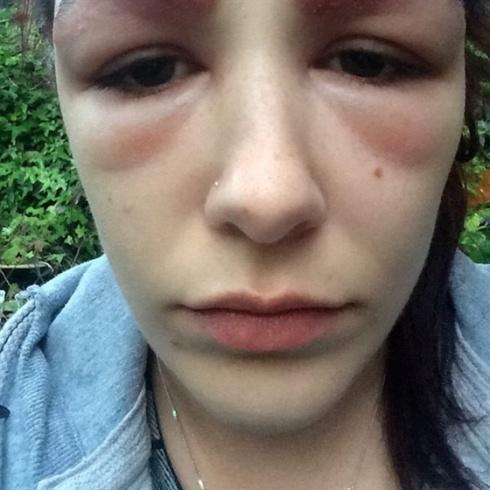 بالصور- فتاة تتشوه بعد إجراء عملية لحاجبيها.. هكذا أصبحت!!