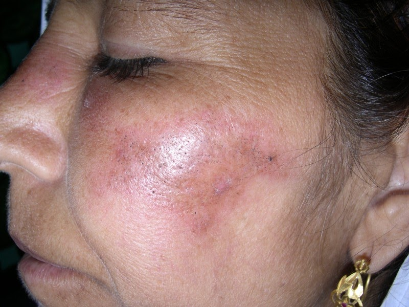 Facial flushing rash fatigue headache lupus