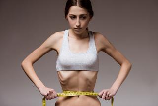 4 sinais claros da Anorexia na mulher