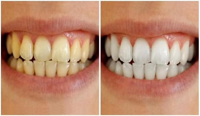 Amazing Inilah Cara Memutihkan Gigi Secara Alami Si Lebo