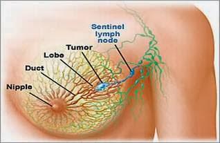 Obat Tumor, Obat Tumor Payudara, Obat Tumor Payudara Tradisional, Obat Kanker, Obat Kanker Payudara, Obat Kanker Payudara Tradisional, Obat tumor payudara herbal, obat herbal tumor payudara, obar tumor payudara alami, obat alami tumor payudara, SNE Kapsul, sne, sne capsul