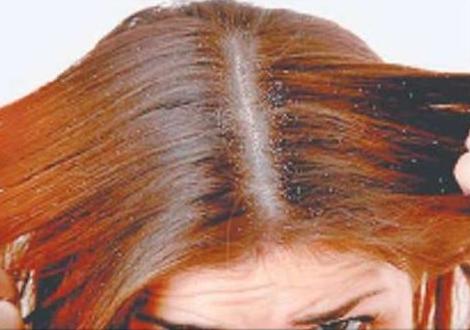 dandruff treatment how to get rid of dandruff dandruff home remedy dandruff shampoo dandruff causes dry scalp