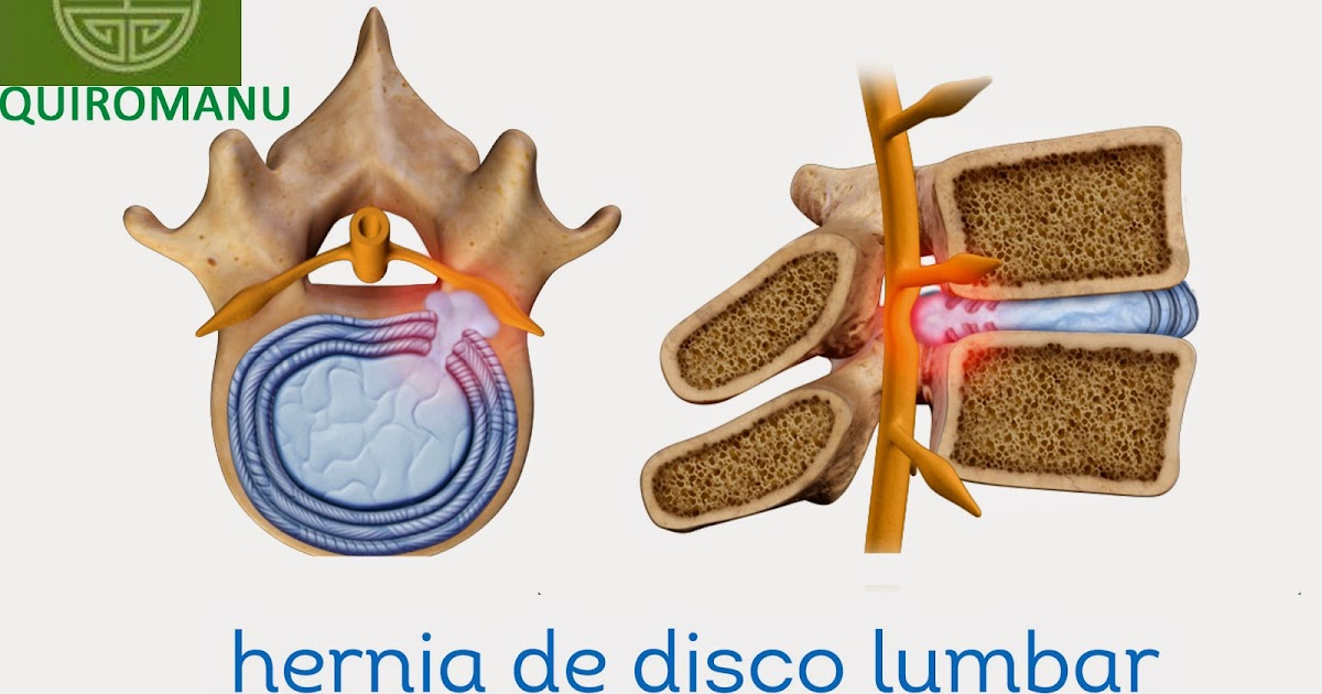 La osteocondrosis de la columna vertebral reflektornyy el síndrome