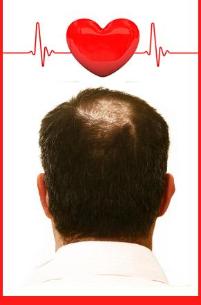 calvicie y problema de corazon