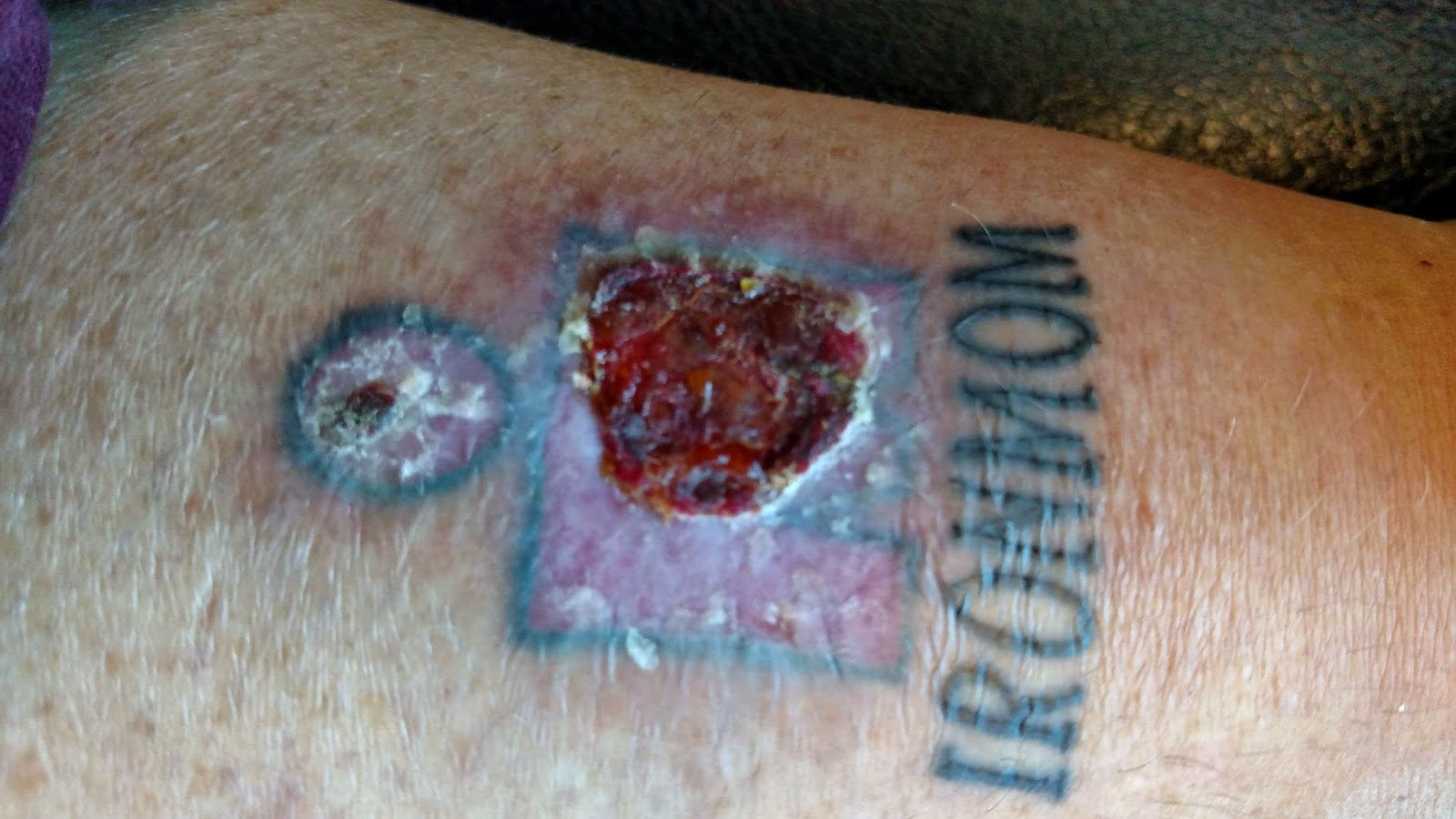 Strongerbetterfastermore january 2015 for Antibiotics for infected tattoo