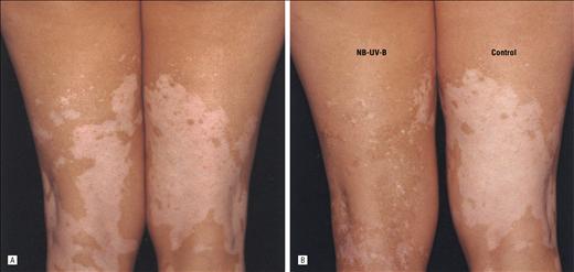Fototerapia y vitiligo