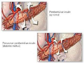 gambar diabetes melitus