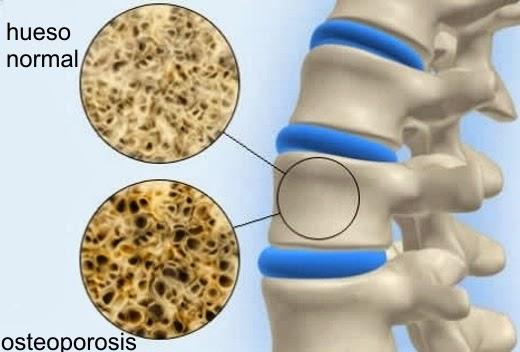 osteoporosis causas síntomas tratamiento prevención