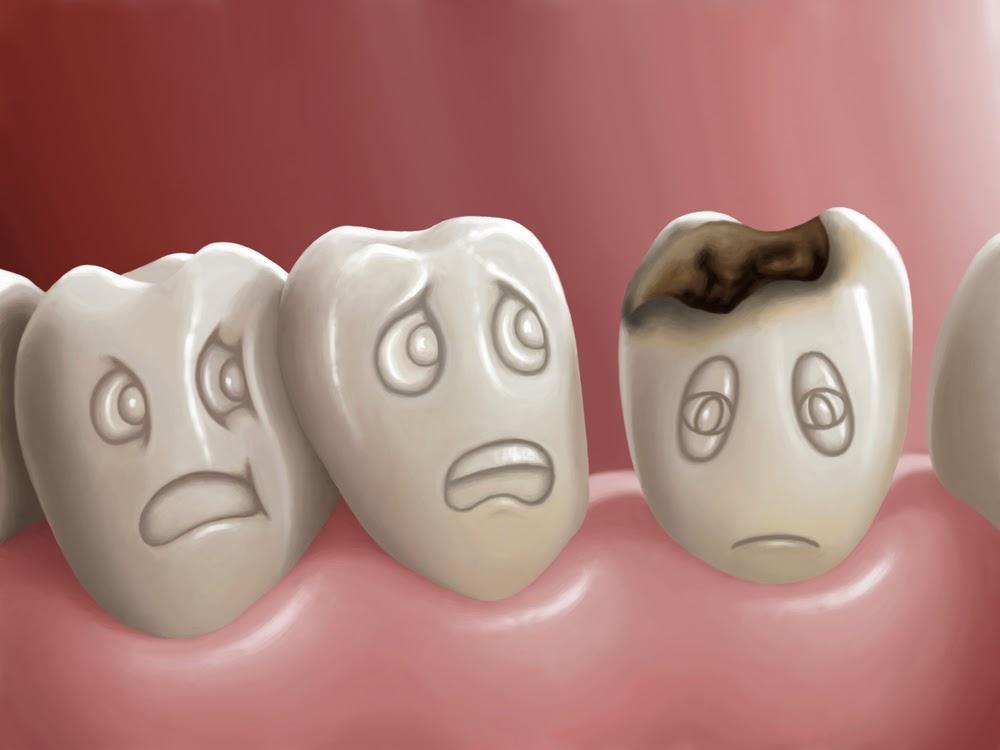 mencegah gigi berlubang