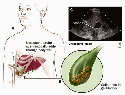multiple gall bladder stones, cholesterol pigment stones, பித்தப்பை கற்கள், பித்த பையில் கல் specialist treatment in chennai tamilnadu india doctor