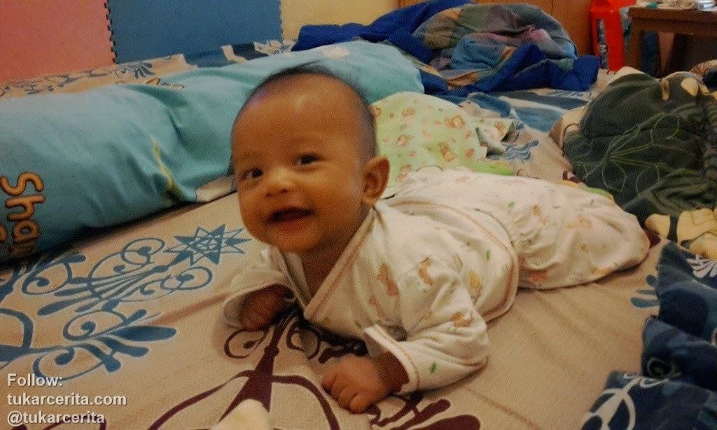 Bayi rentan dengan gangguan kulit intertrigo