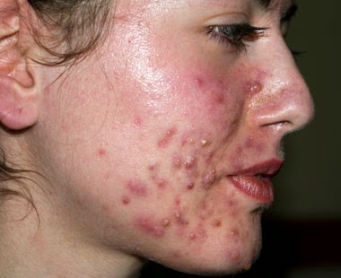 acne skin inflammation symptoms acne skin inflammation regularly shows ...