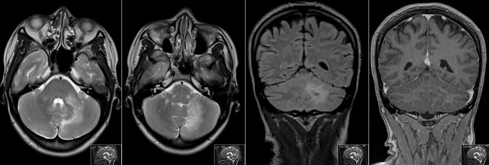 Radiology MRI: PML in HIV - Cerebellum