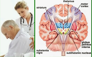 Cara Pengobatan Penyakit Parkinson