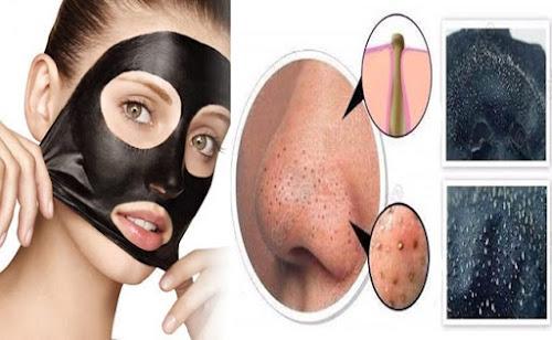 Máscara Preta para Tirar Cravos - Receita Caseira