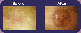 Before and After pictues of areola repigmentation where tattoo the nipple after breast cancer