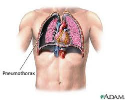 tension pneumothorax, spontaneous pneumothorax, spontaneous, pneumothorax symptoms, pneumothorax treatment , open pneumothorax, pneumothorax symptoms, atelectasis, symptoms of pneumothorax, pneumothorax definition, right pneumothorax, pneumothorax causes, pneumothorax, what is pneumothorax, Hemopneumothrax