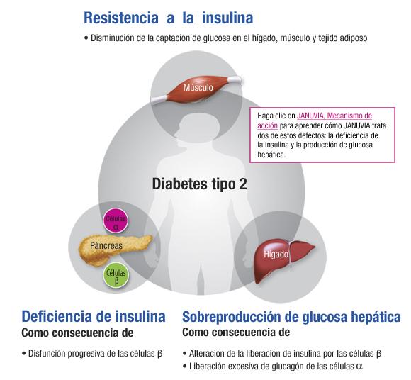 Trabajo programas diabetes tipo II