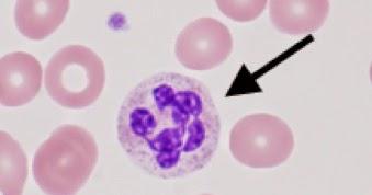 巨 赤 芽 球 性 貧血